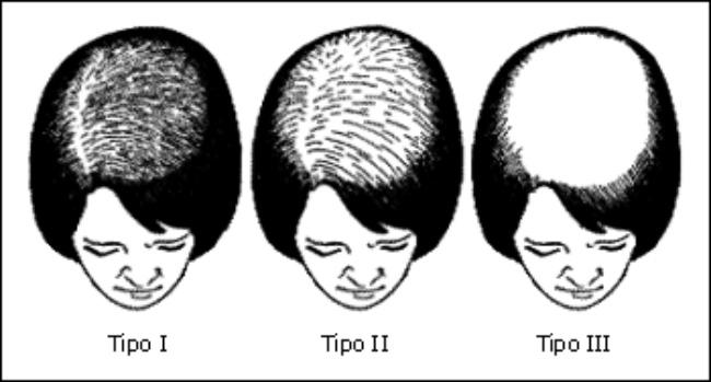 Le piaghe che stanno dai capelli coltivati come trattare